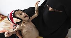Famine Stalks Yemen: Growing Catastrophic Food Crisis
