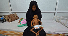 The Guardian: Yemen Famine Feared as Starving Children Fight for Lives in Hospital