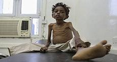 Yemen's Children Starve as War Drags On!