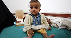 Save the Children Calls for Yemen Ceasefire