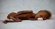 Yemeni Children at Risk as Catastrophe Looms
