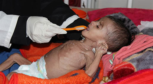50K+ Yemeni Children Will Die By the End of the Year