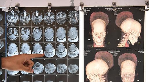 Indian Surgeons Remove Heaviest Brain Tumor!