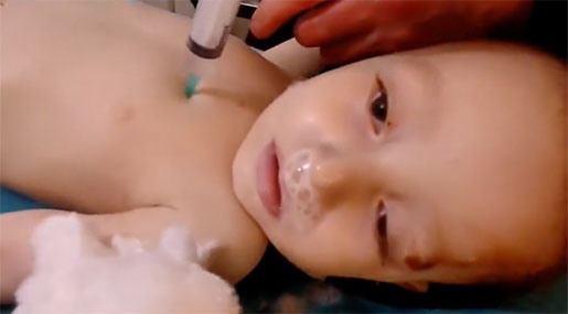 Swedish Medical Association: White Helmets Murdered Kids for Fake Gas Attack Videos