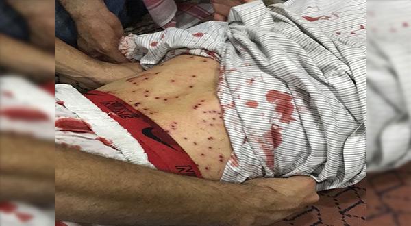 Bahraini Forces Storm Diraz, First Martyr Falls [Photos]