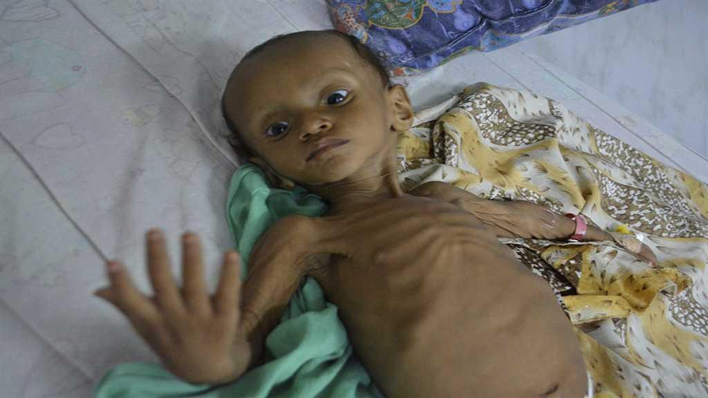 UN Warns: +7 Million Yemeni Children Face 'Serious' Famine Threat