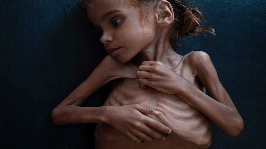 Yemen Girl Who Turned World's Eyes to Famine Is Dead