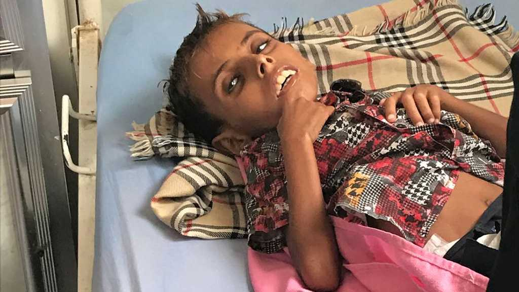 Yemen: The 10yo Boy Who Weighs Just 10kg in a Country on the Brink of Famine