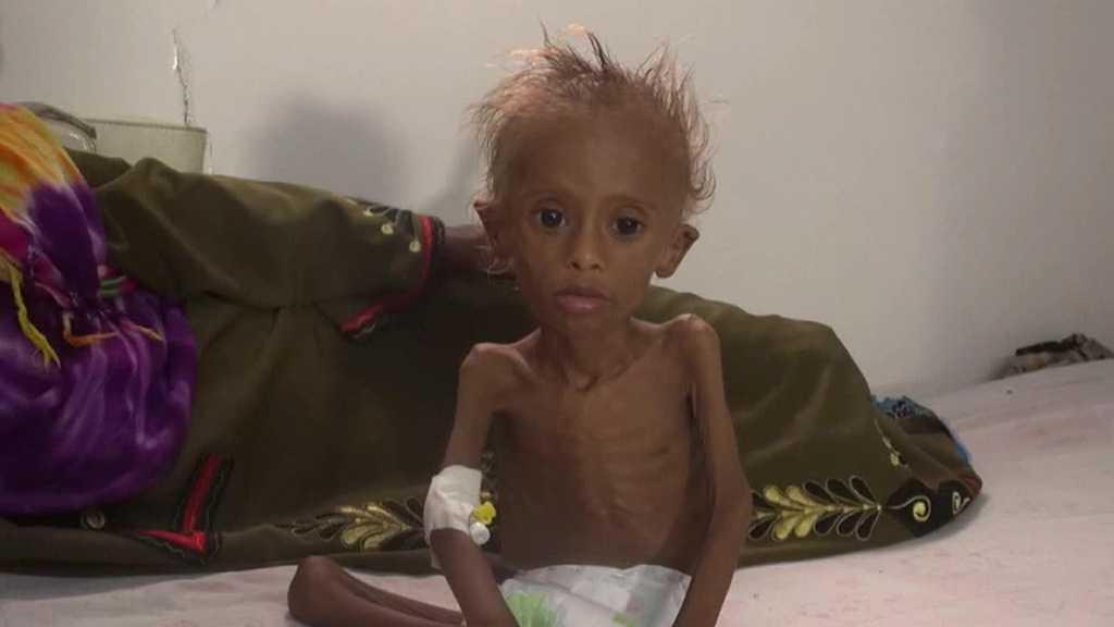 Yemen Genocide: 14 Million 'On Brink of Famine'