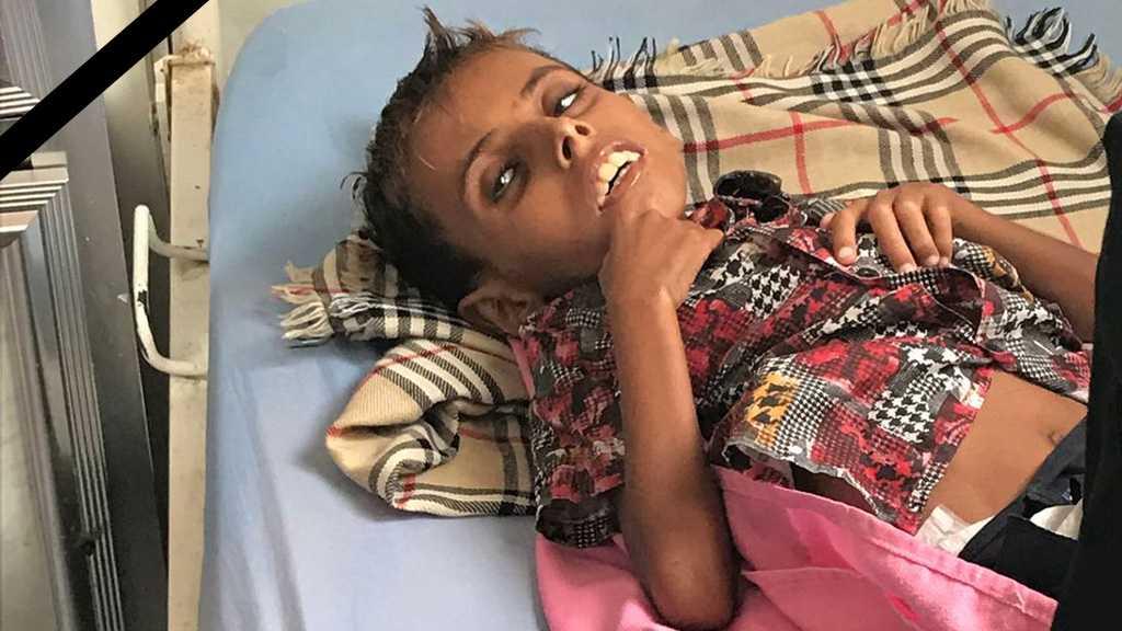 """Save Yemen Children: The 10kg, 10-yo Adam Just """"Dies of Famine"""""""