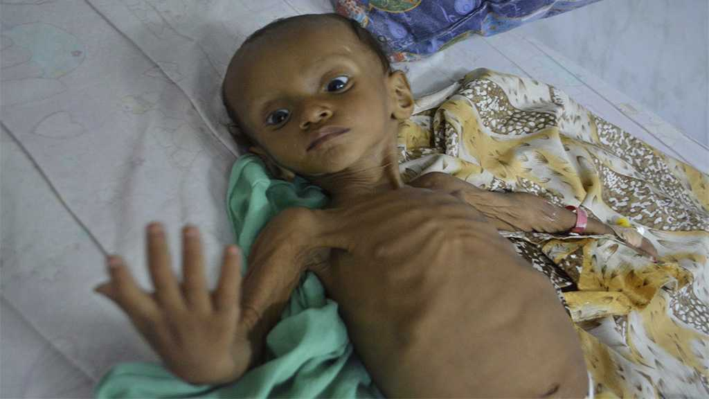 Yemen's Catastrophe: Trying to Make A Child Smile 'Like Tickling A Ghost'