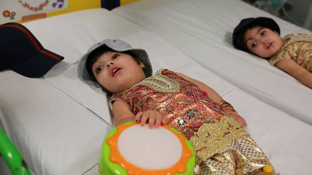 Conjoined Twins Joined At Skull Separated After 50 Hours of Operations