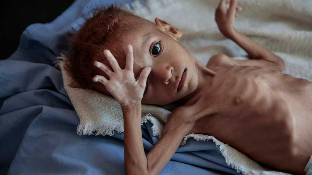 Saudi War on Yemen Killed 3,6k+ Children, Paralyzed 800