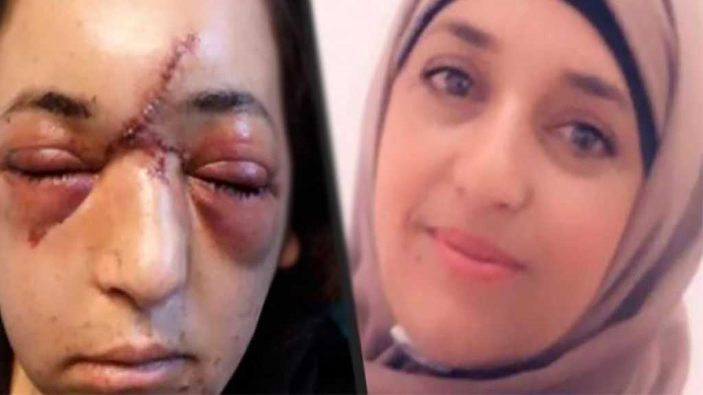 'Israeli' Soldiers Broke Her Face, Skull As She Was Protecting Her Kid from Detention