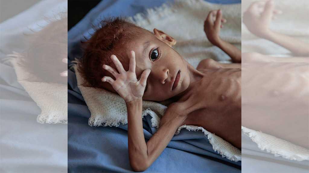 Yemen War Kills 50,000 Children Every Year