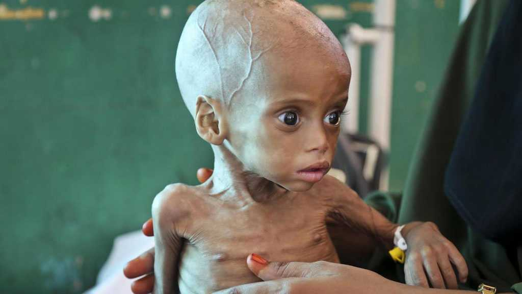 Children Injected with Expired Vaccines in Occupied Yemeni Areas