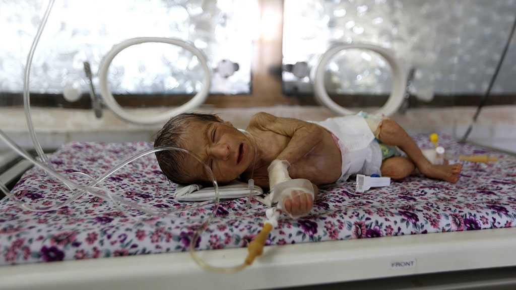 Yemeni Children Suffer Record Rates of Acute Malnutrition