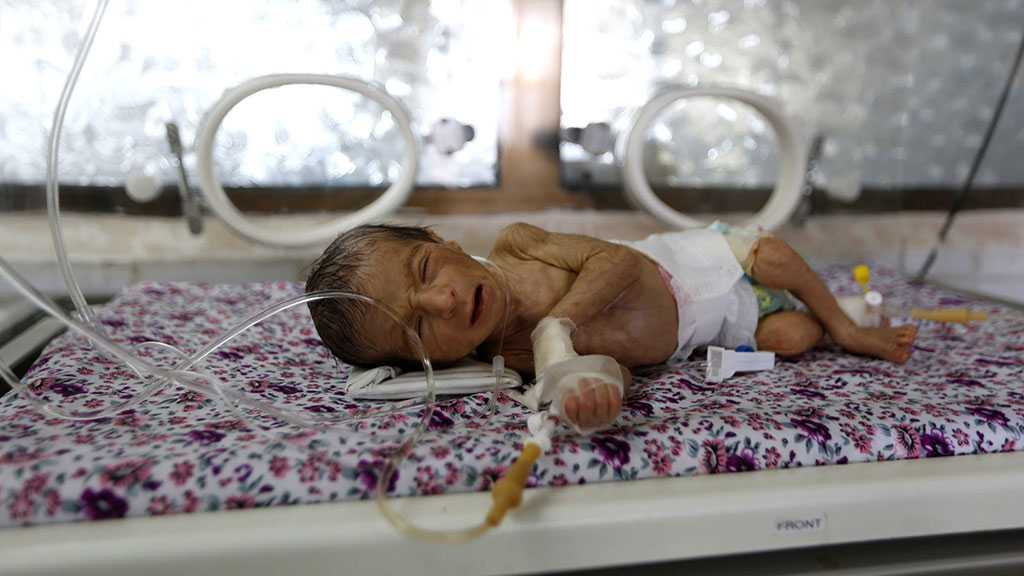 Yemeni Children Suffer Record Rates of Acute Malnutrition