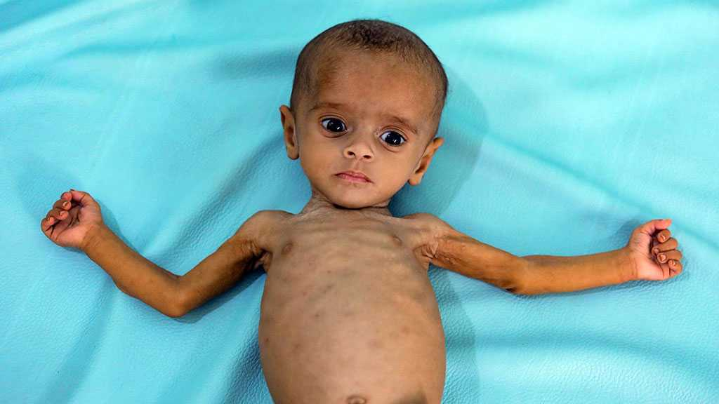 UN Chief Warns Yemen in Imminent Danger of Famine