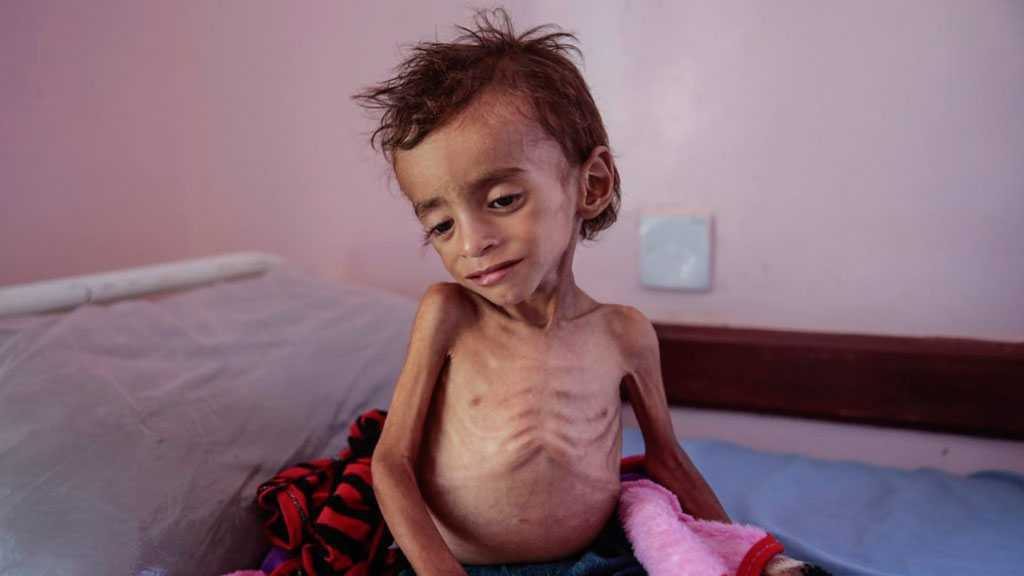 Yemen Can't Wait: Almost Half of Population Experiencing High Levels of Food Insecurity