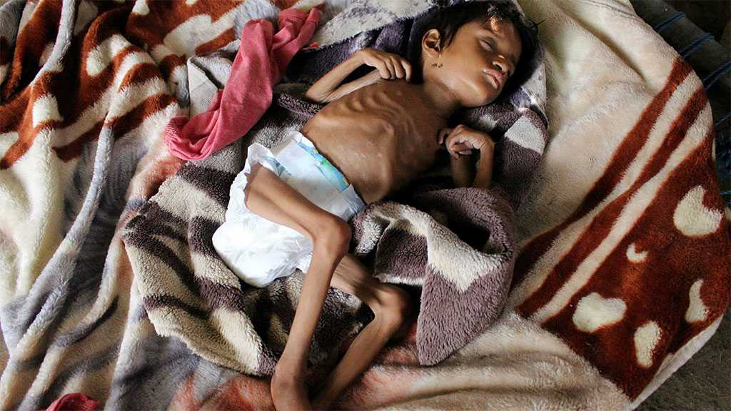 A Massive Famine Is Creeping Into Yemen, We Need To Stop It Devouring a Generation