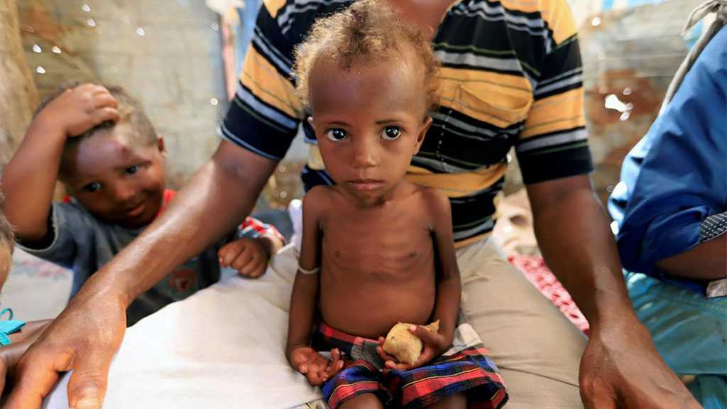 With Yemen on the Brink of Famine, the UK Must Not Be an Accomplice