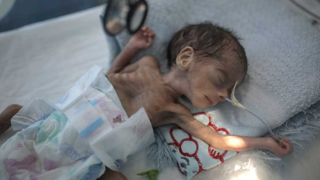 Yemen: Millions at Risk of Starvation as UN Is Short of Funds