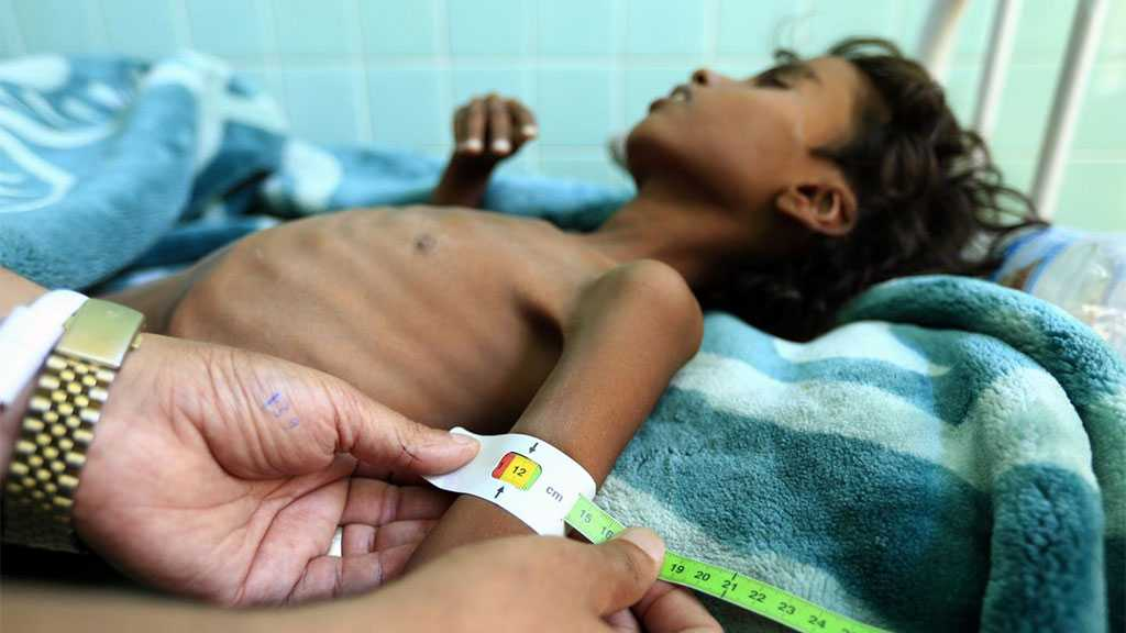 Hundreds of Yemeni Children Have Died Due to UNs' Failure to Provide Life-saving Basic Devices