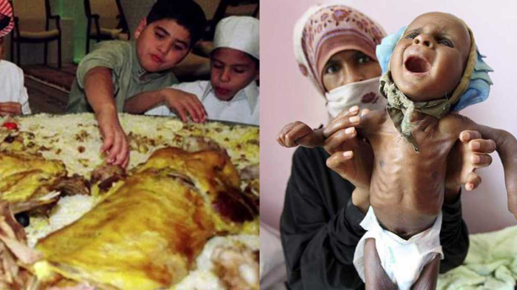Yemen's Children Are Dying of Starvation, Saudis Suffer Obesity