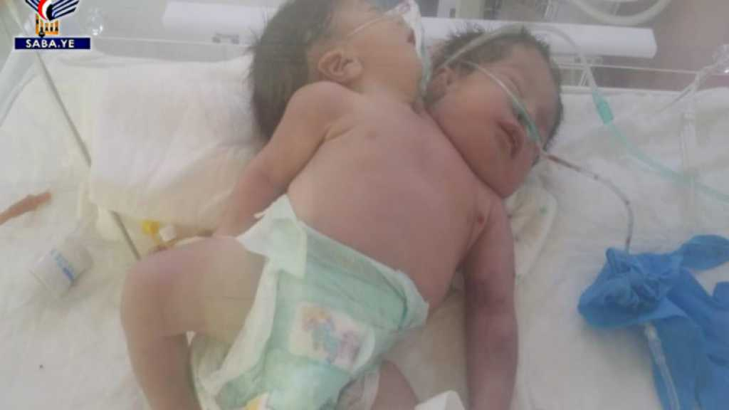 #OpenSanaaAirport: Yemeni Conjoined Twins Die Due to Airport Closure, UN Negligence
